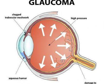 El glaucoma y las sinequias oculares: