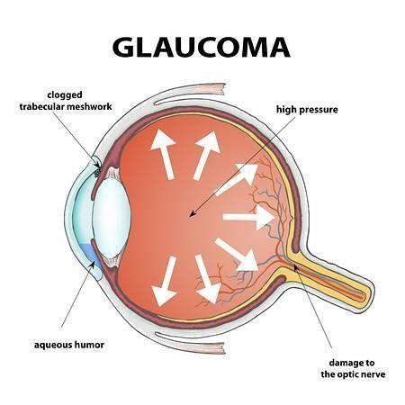 glaucoma y las sinequias oculares