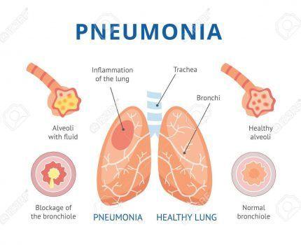 Diferencias entre  bronquitis y neumonía