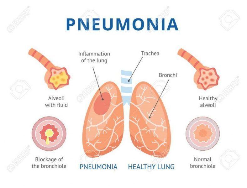 diferencias entre bronquitis y neumonías