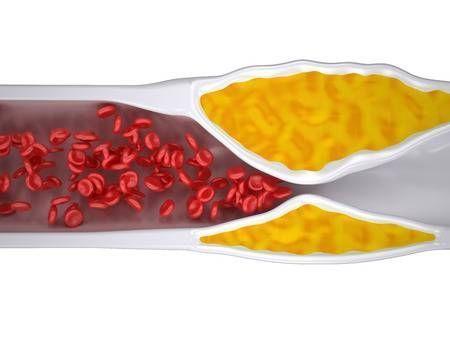 cómo combatir el colesterol malo