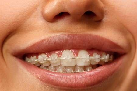La salud bucal,  afecta a tu salud general