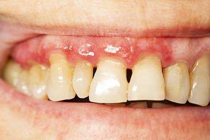 La salud bucal afecta a tu salud general