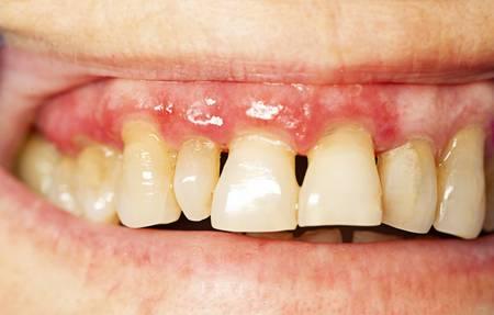 La salud bucal afecta a tu salud general.