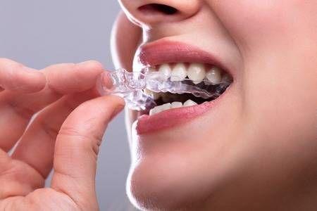 Cómo dejar de rechinar los dientes