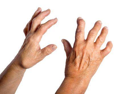 Como combatir la artritis reumatoide