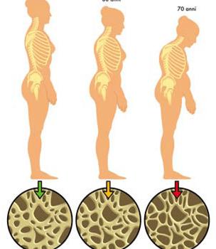 La osteoporosis: