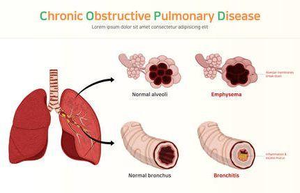 Obstrucción pulmonar crónica: