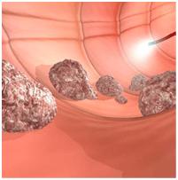 La prevención del cáncer de colon.