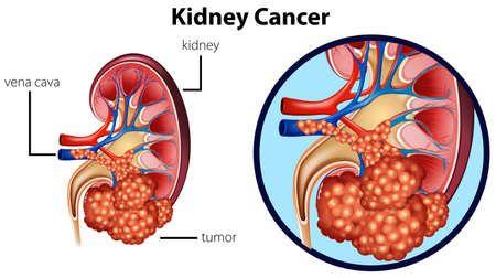 el cáncer urológico.