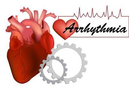 Las arritmias cardiacas