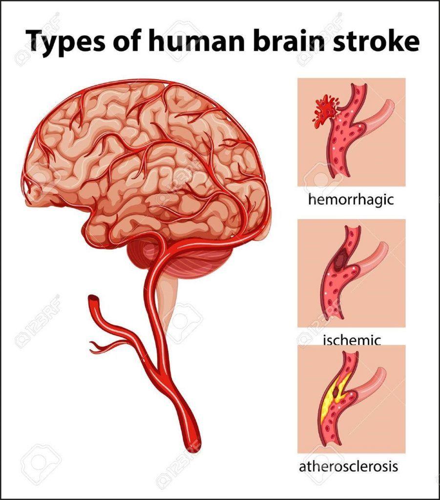 accidentes cerebrovasculares